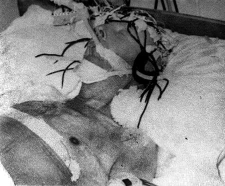 Franco, moribundo